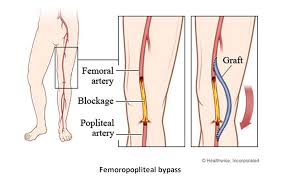 Femoral Distal Arterial Bypass Surgery